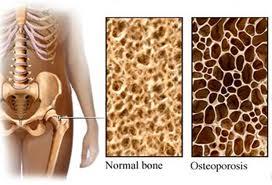 bones_dets_1